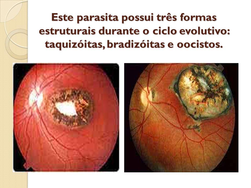 Este parasita possui três formas estruturais durante o ciclo evolutivo: taquizóitas, bradizóitas e oocistos.