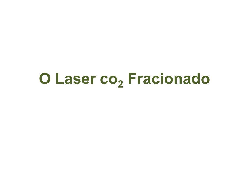 O Laser co2 Fracionado