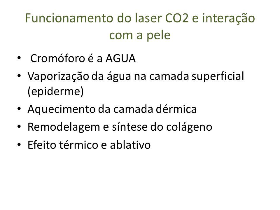 Funcionamento do laser CO2 e interação com a pele