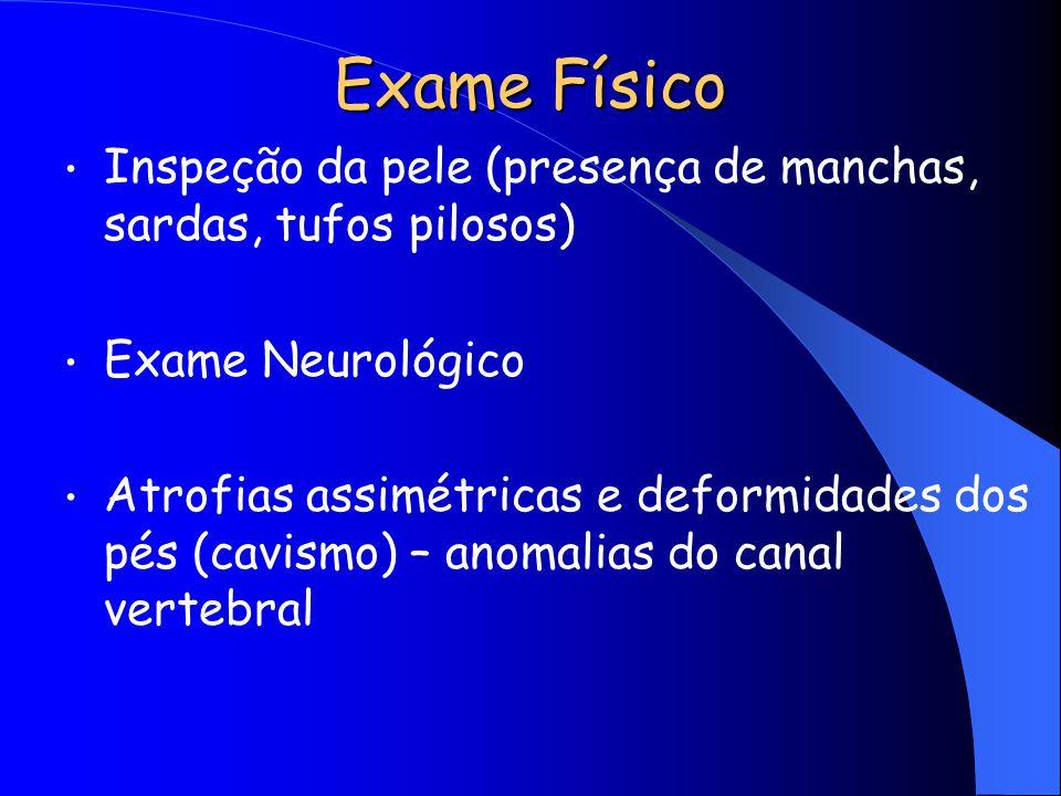 Exame Físico Inspeção da pele (presença de manchas, sardas, tufos pilosos) Exame Neurológico.