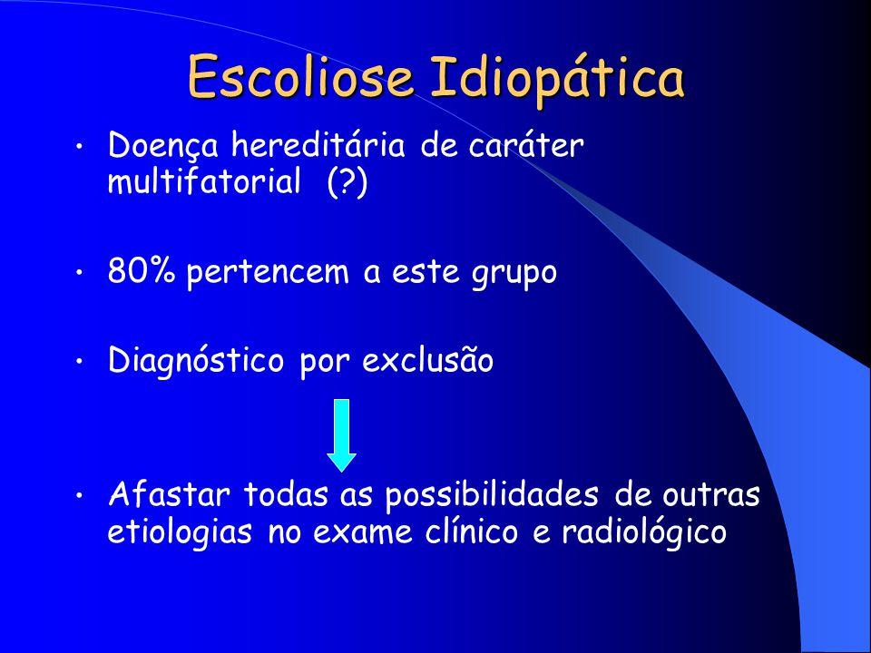 Escoliose Idiopática Doença hereditária de caráter multifatorial ( )