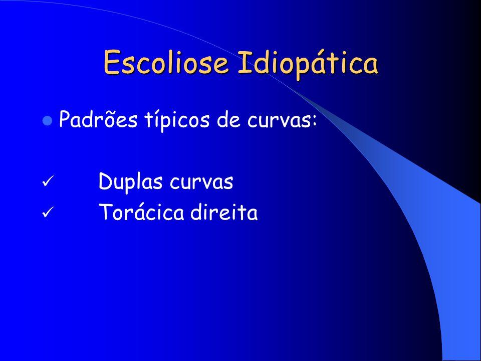 Escoliose Idiopática Padrões típicos de curvas: Duplas curvas