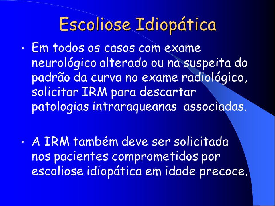 Escoliose Idiopática