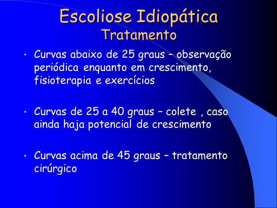 Escoliose Idiopática Tratamento