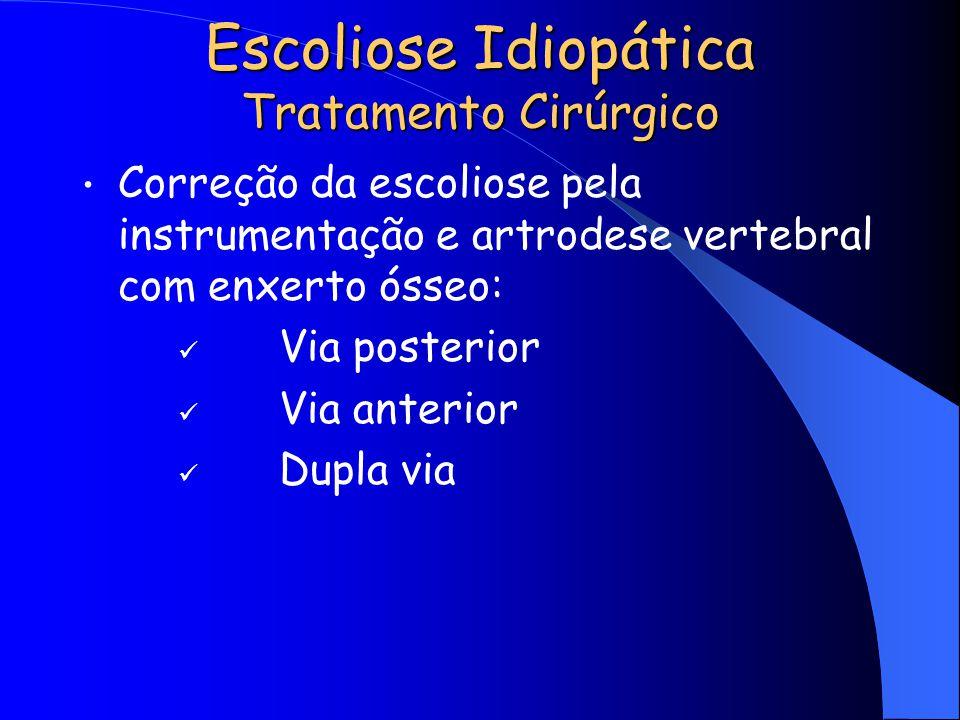 Escoliose Idiopática Tratamento Cirúrgico