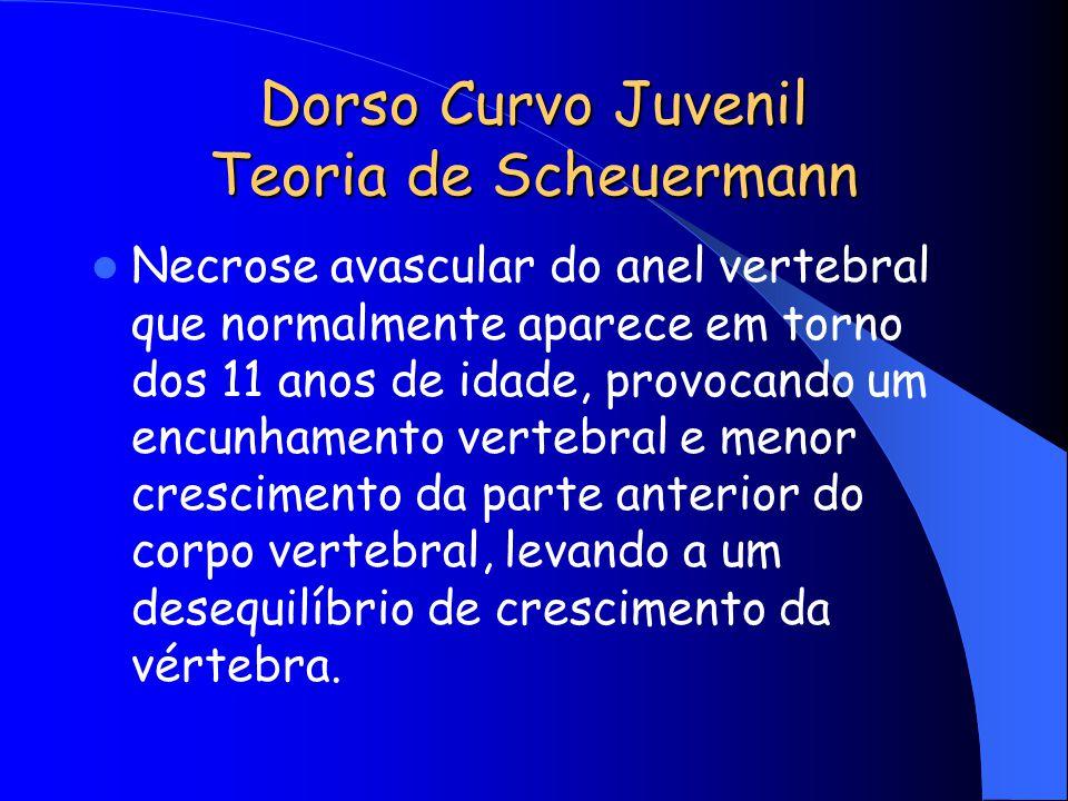 Dorso Curvo Juvenil Teoria de Scheuermann
