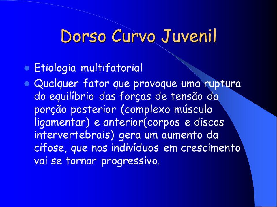Dorso Curvo Juvenil Etiologia multifatorial