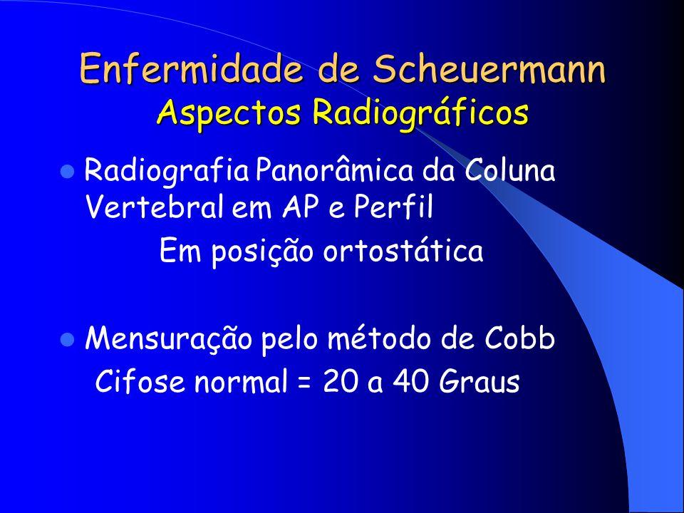 Enfermidade de Scheuermann Aspectos Radiográficos