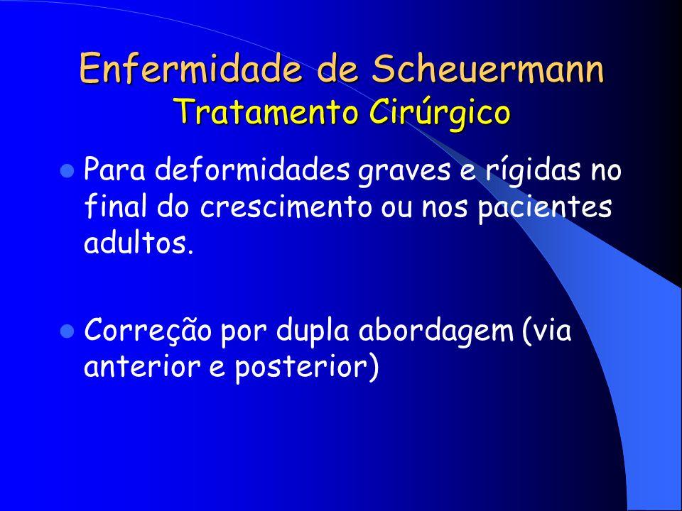 Enfermidade de Scheuermann Tratamento Cirúrgico