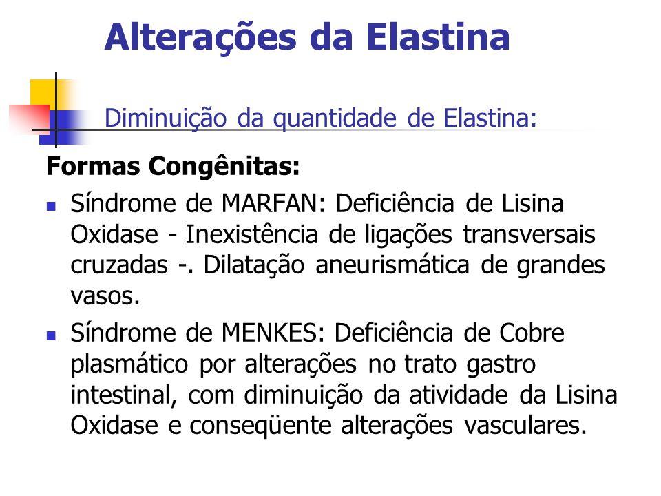 Alterações da Elastina Diminuição da quantidade de Elastina: