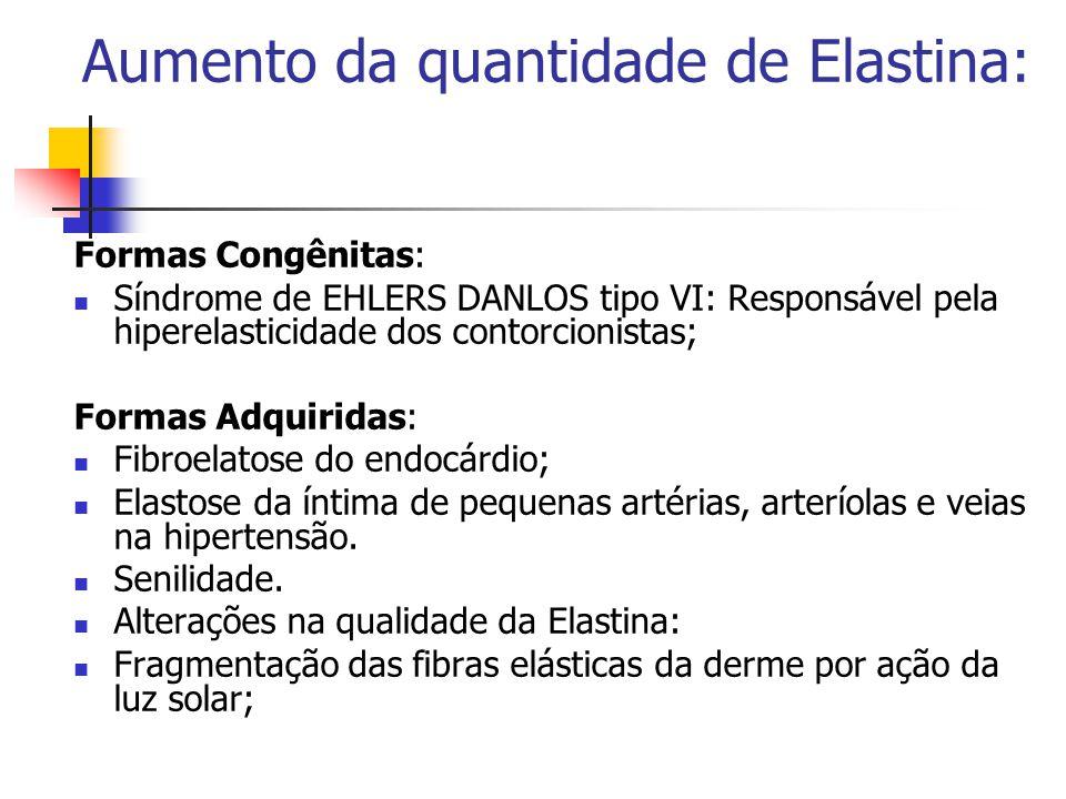 Aumento da quantidade de Elastina: