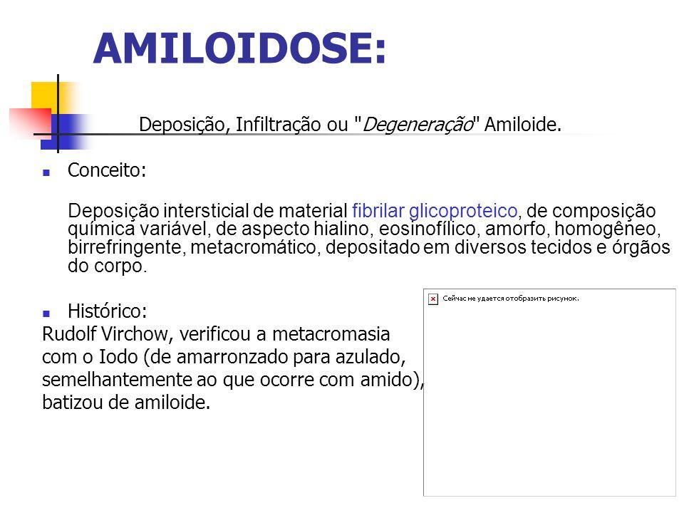 AMILOIDOSE: Deposição, Infiltração ou Degeneração Amiloide.