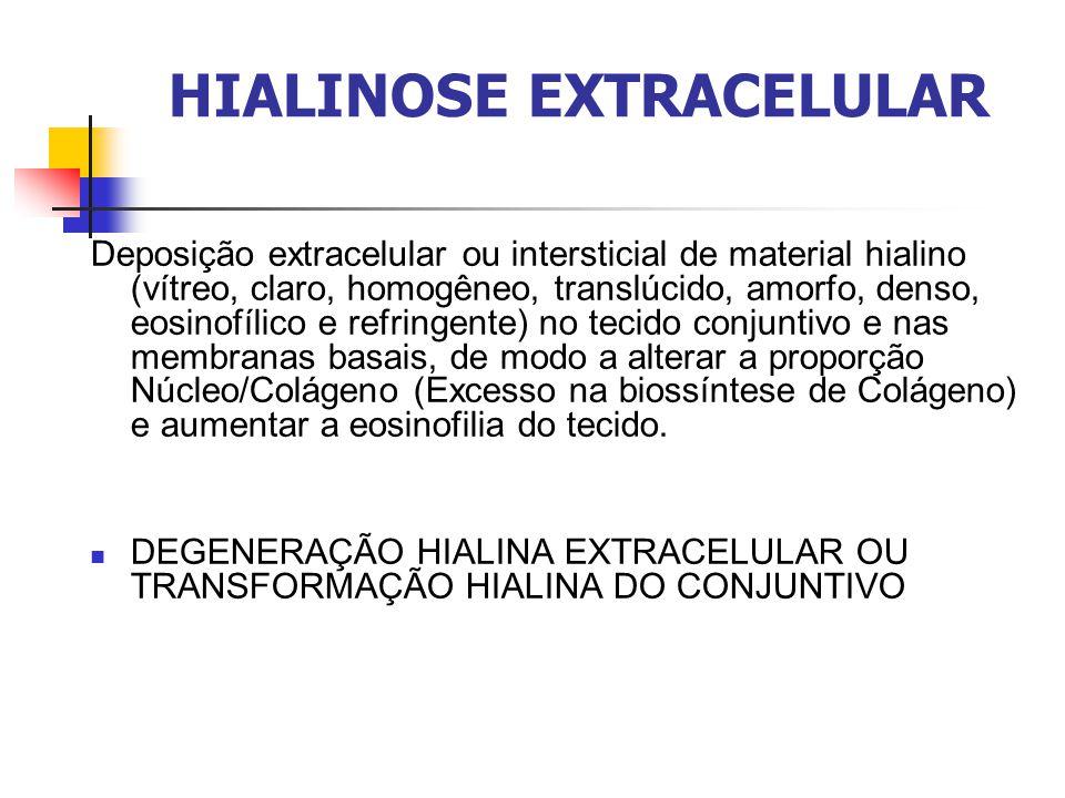 HIALINOSE EXTRACELULAR