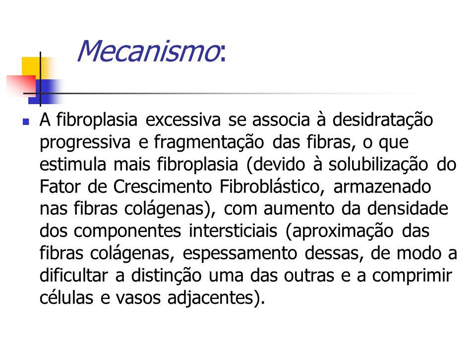 Mecanismo: