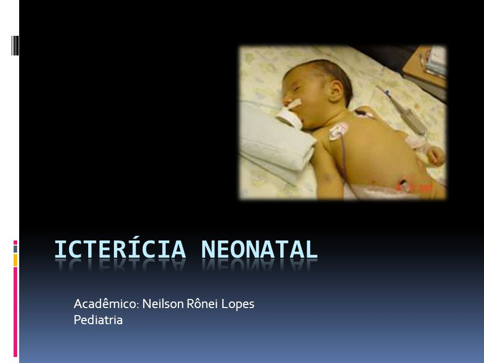 Acadêmico: Neilson Rônei Lopes Pediatria