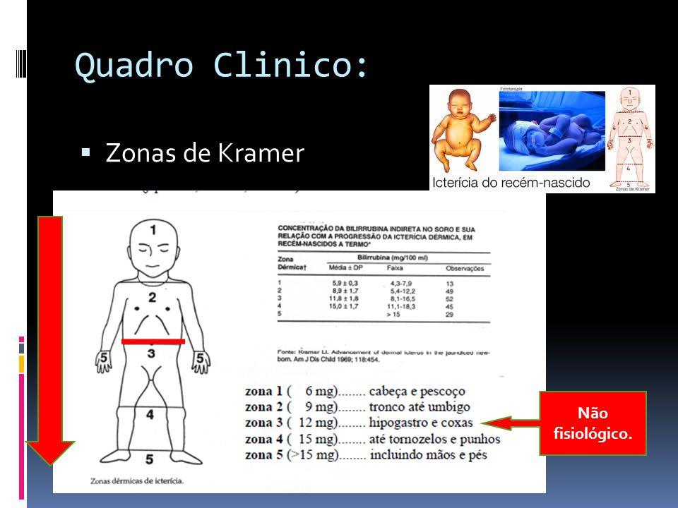 Quadro Clinico: Zonas de Kramer Não fisiológico.