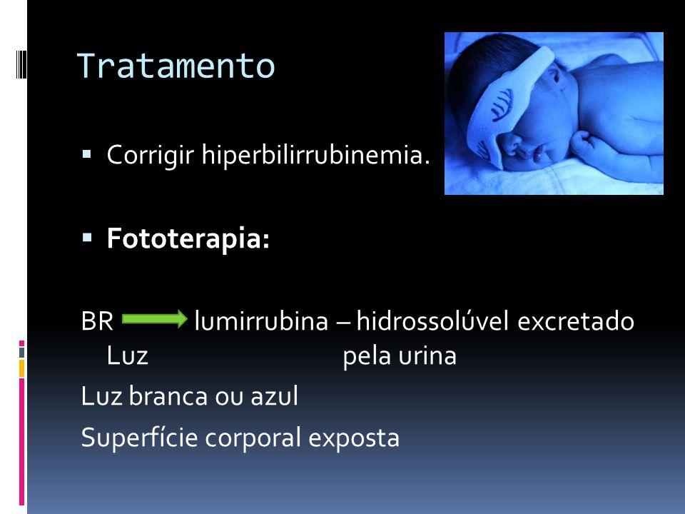 Tratamento Fototerapia: Corrigir hiperbilirrubinemia.