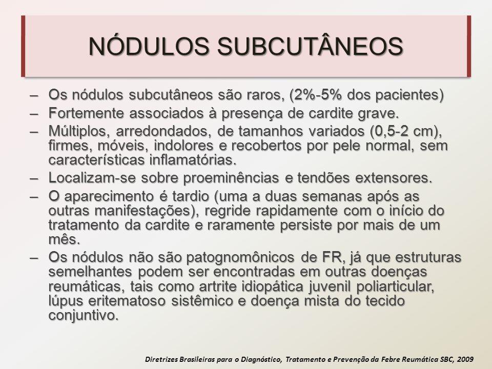 NÓDULOS SUBCUTÂNEOS Os nódulos subcutâneos são raros, (2%-5% dos pacientes) Fortemente associados à presença de cardite grave.