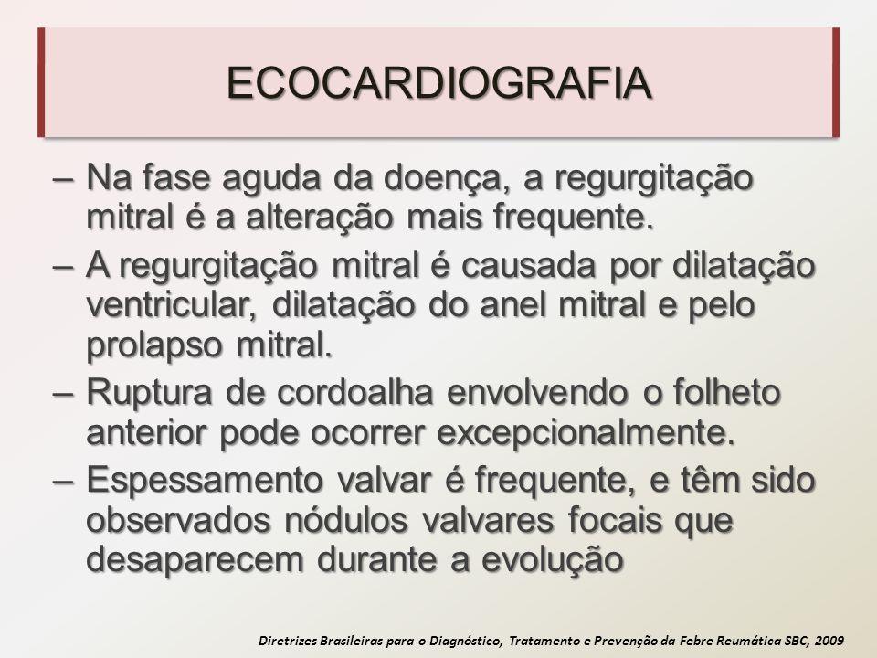 ECOCARDIOGRAFIA Na fase aguda da doença, a regurgitação mitral é a alteração mais frequente.