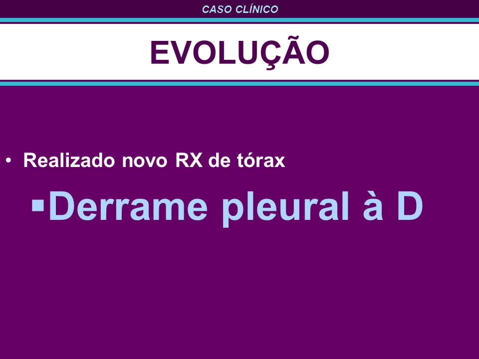 EVOLUÇÃO Realizado novo RX de tórax Derrame pleural à D