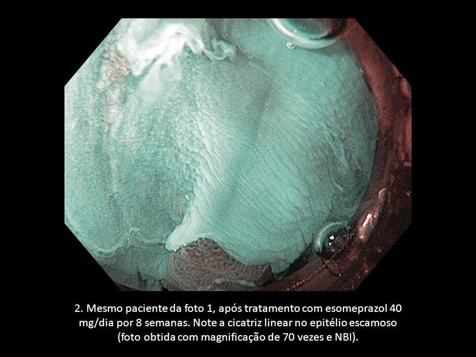 2. Mesmo paciente da foto 1, após tratamento com esomeprazol 40 mg/dia por 8 semanas.