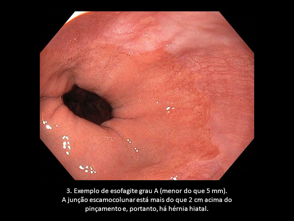 3. Exemplo de esofagite grau A (menor do que 5 mm).