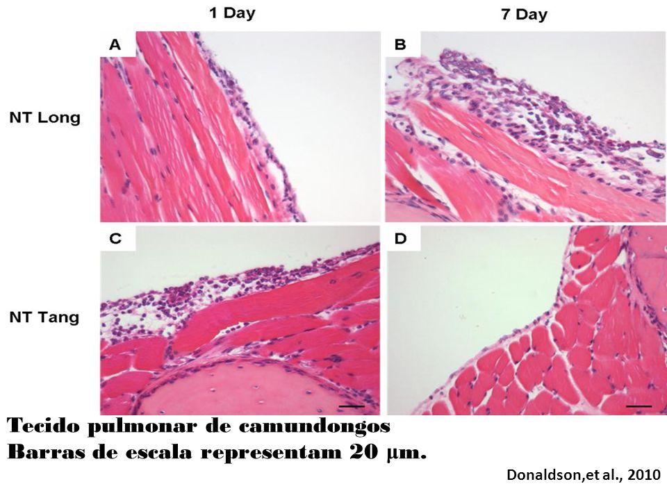 Tecido pulmonar de camundongos Barras de escala representam 20 μm.