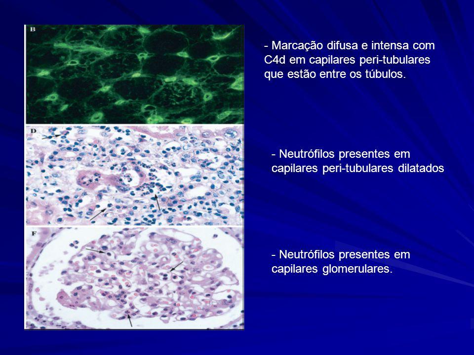 - Marcação difusa e intensa com C4d em capilares peri-tubulares que estão entre os túbulos.