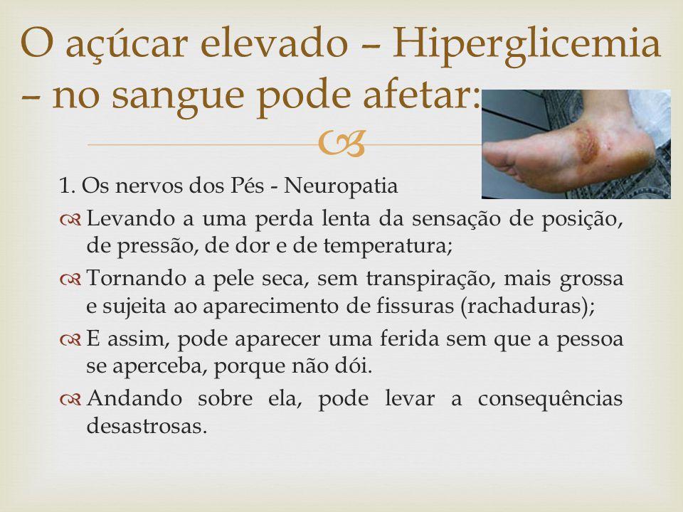 O açúcar elevado – Hiperglicemia – no sangue pode afetar: