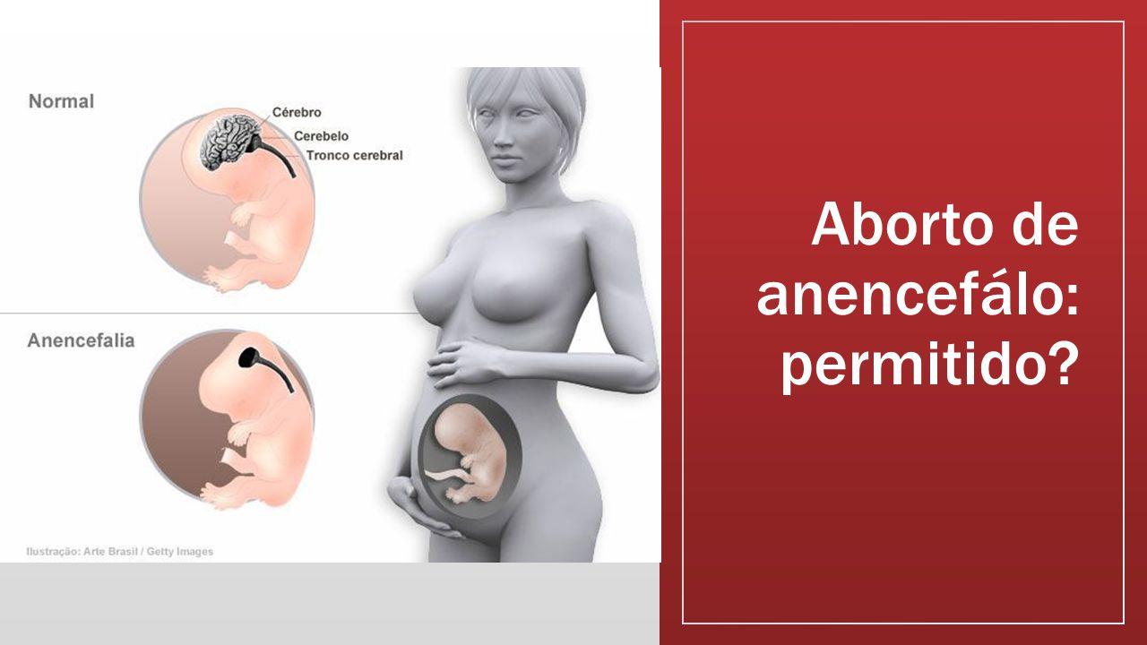 Aborto de anencefálo: permitido