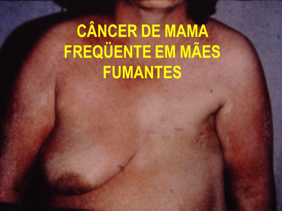 CÂNCER DE MAMA FREQÜENTE EM MÃES FUMANTES