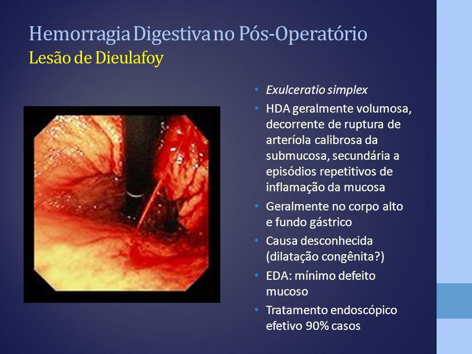 Hemorragia Digestiva no Pós-Operatório Lesão de Dieulafoy
