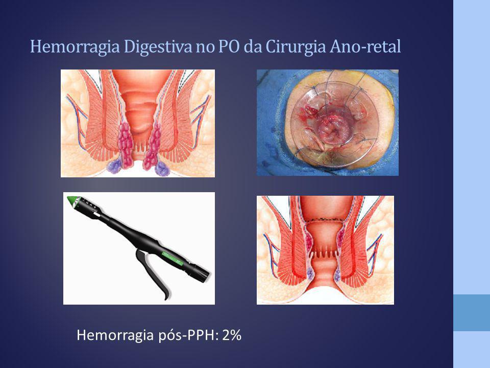 Hemorragia Digestiva no PO da Cirurgia Ano-retal