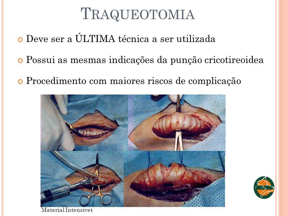 Traqueotomia Deve ser a ÚLTIMA técnica a ser utilizada