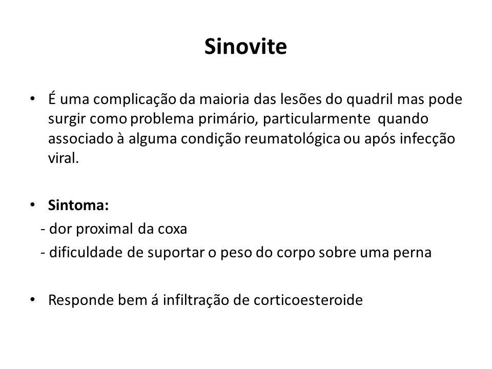 Sinovite