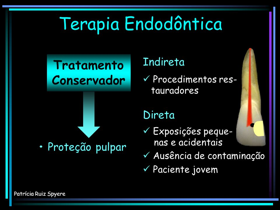 Terapia Endodôntica Tratamento Conservador Indireta Direta