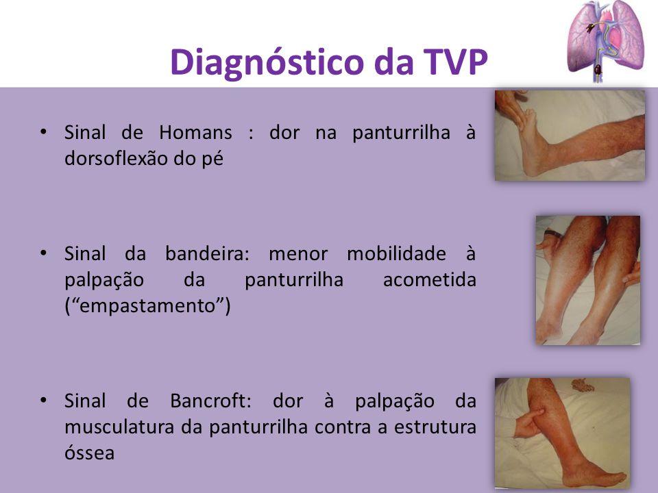Diagnóstico da TVP Sinal de Homans : dor na panturrilha à dorsoflexão do pé.