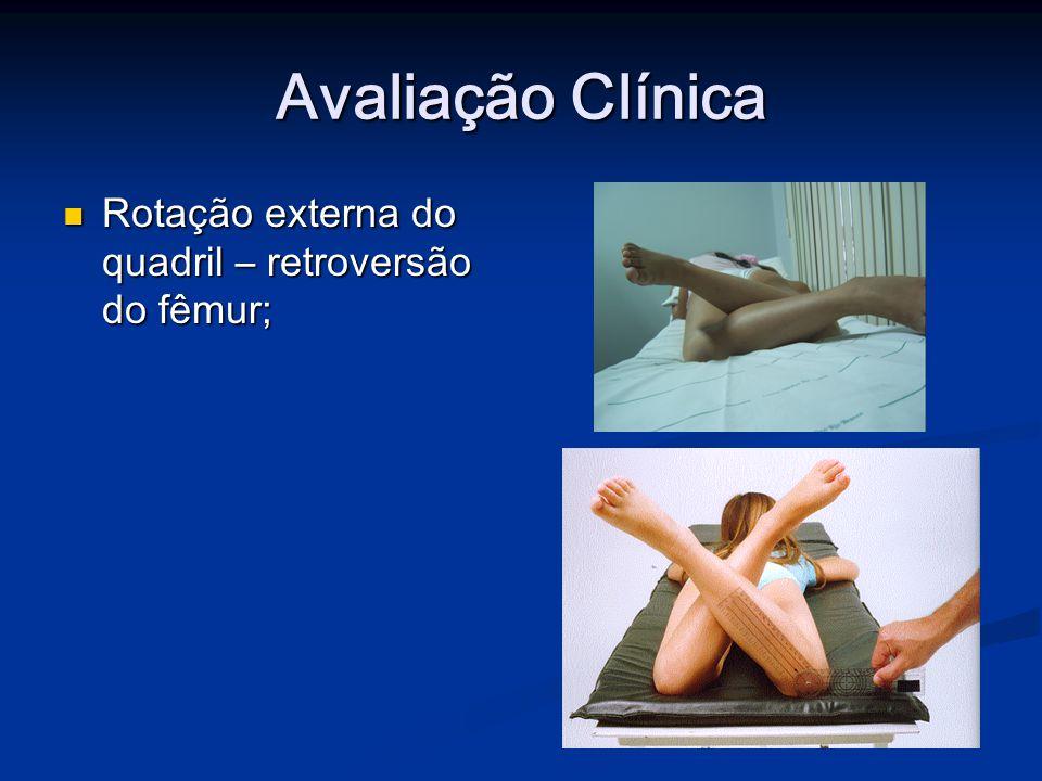 Avaliação Clínica Rotação externa do quadril – retroversão do fêmur;