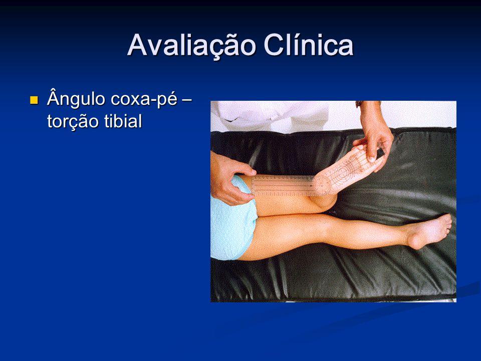 Avaliação Clínica Ângulo coxa-pé – torção tibial