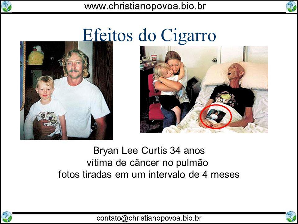 Efeitos do Cigarro Bryan Lee Curtis 34 anos vítima de câncer no pulmão fotos tiradas em um intervalo de 4 meses.