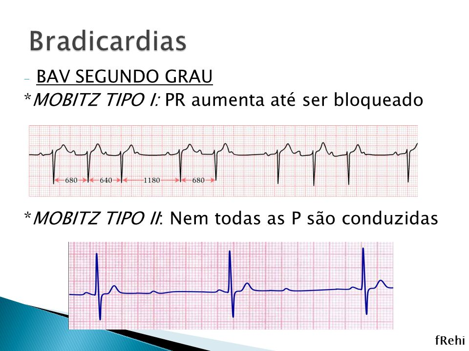 Bradicardias BAV SEGUNDO GRAU