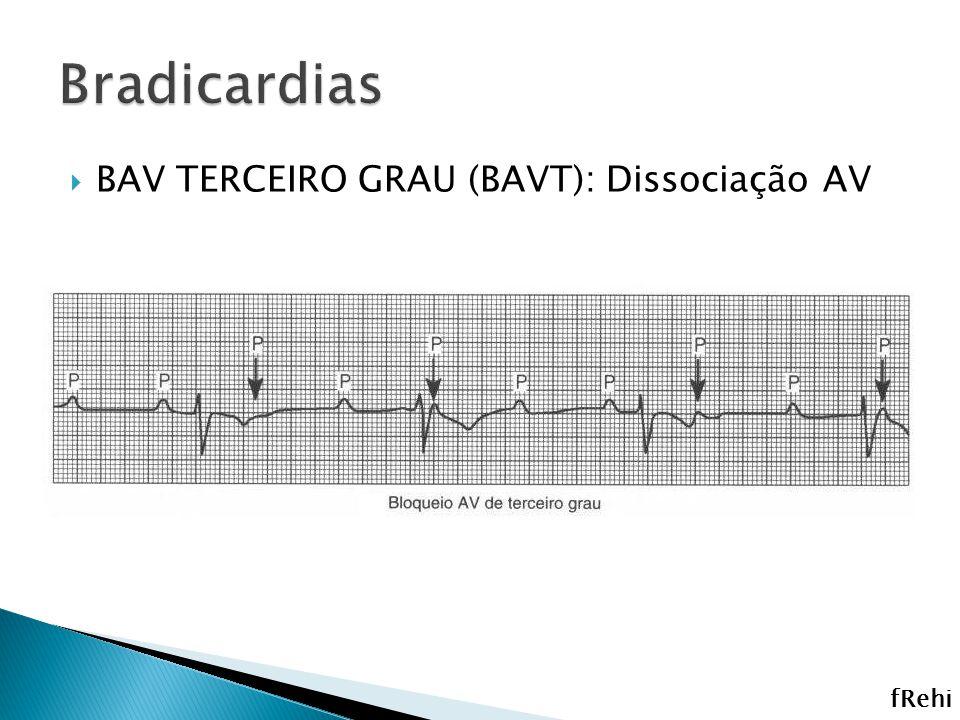 Bradicardias BAV TERCEIRO GRAU (BAVT): Dissociação AV fRehi