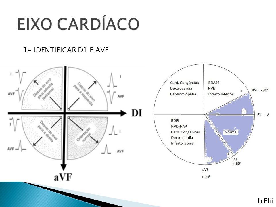 EIXO CARDÍACO 1- IDENTIFICAR D1 E AVF frEhi