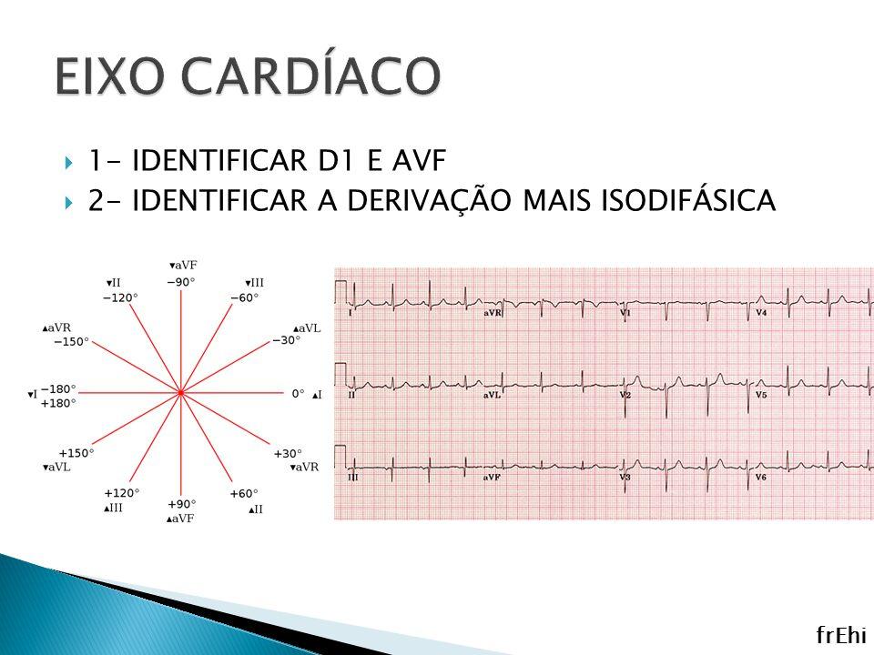 EIXO CARDÍACO 1- IDENTIFICAR D1 E AVF