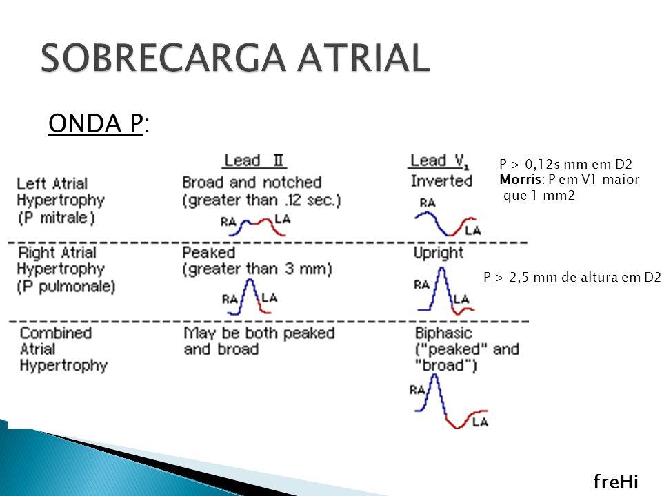 SOBRECARGA ATRIAL ONDA P: freHi P > 0,12s mm em D2