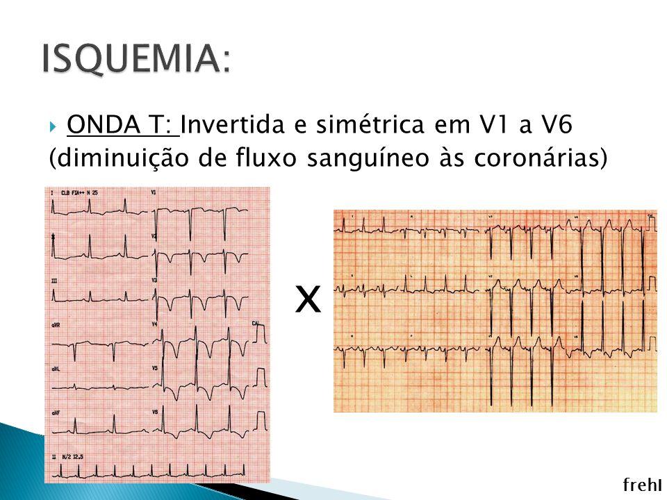 x ISQUEMIA: ONDA T: Invertida e simétrica em V1 a V6