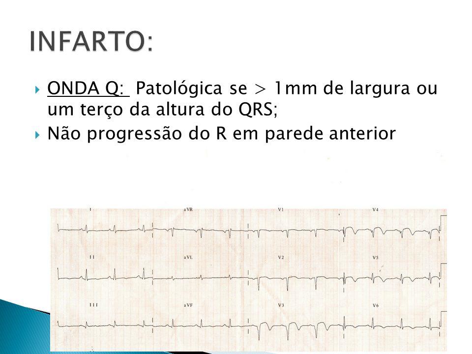 INFARTO: ONDA Q: Patológica se > 1mm de largura ou um terço da altura do QRS; Não progressão do R em parede anterior.