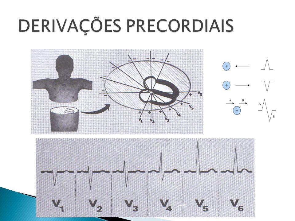 DERIVAÇÕES PRECORDIAIS