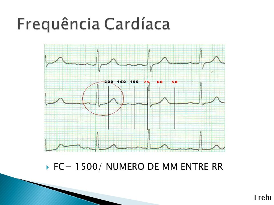 Frequência Cardíaca FC= 1500/ NUMERO DE MM ENTRE RR Frehi