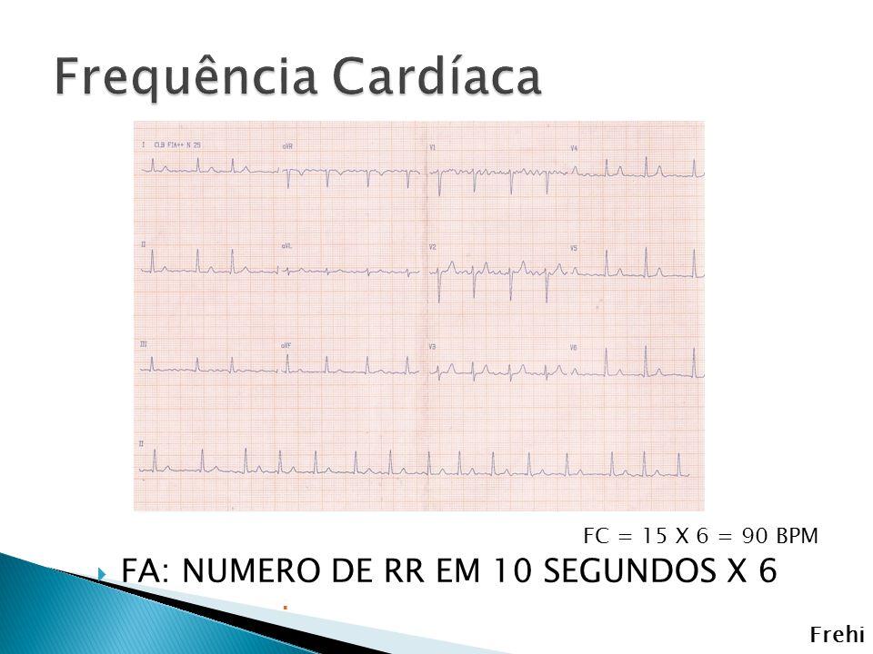Frequência Cardíaca FA: NUMERO DE RR EM 10 SEGUNDOS X 6